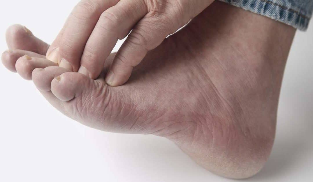 neuropathy in a foot